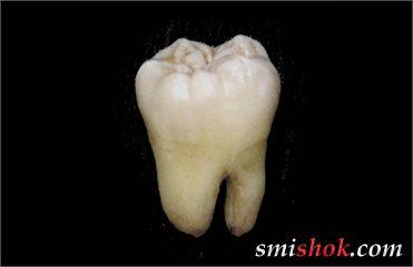 Японці виростили і імплантували зуб зі стовбурових клітин