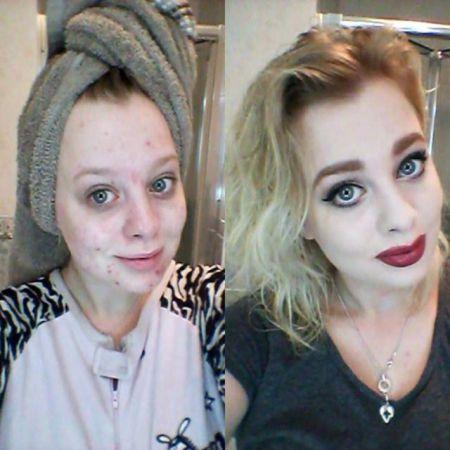 Как девушки умело прячут прыщи под макияжем