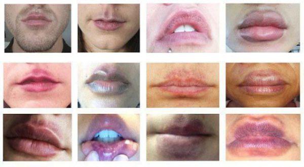 Увеличение губ в домашних условиях пошло не по плану