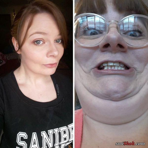 Фотографии до и после, просматривая которые сложно поверить в то, что на них одна и та же девушка